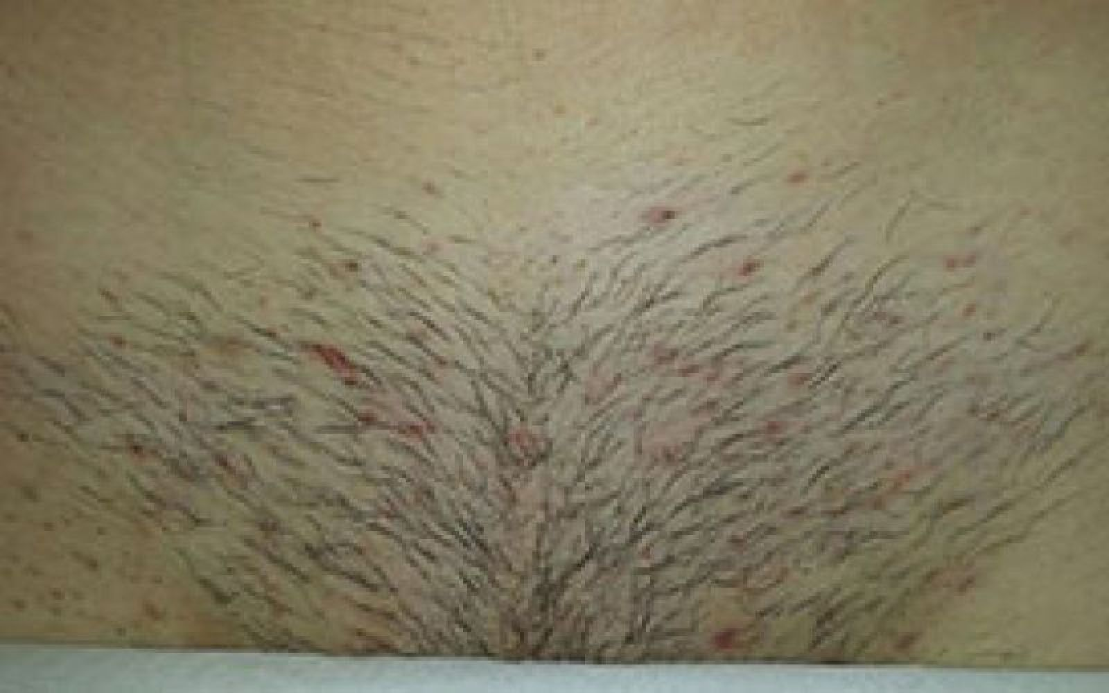 Before and After Hair Removal Results - CLHR